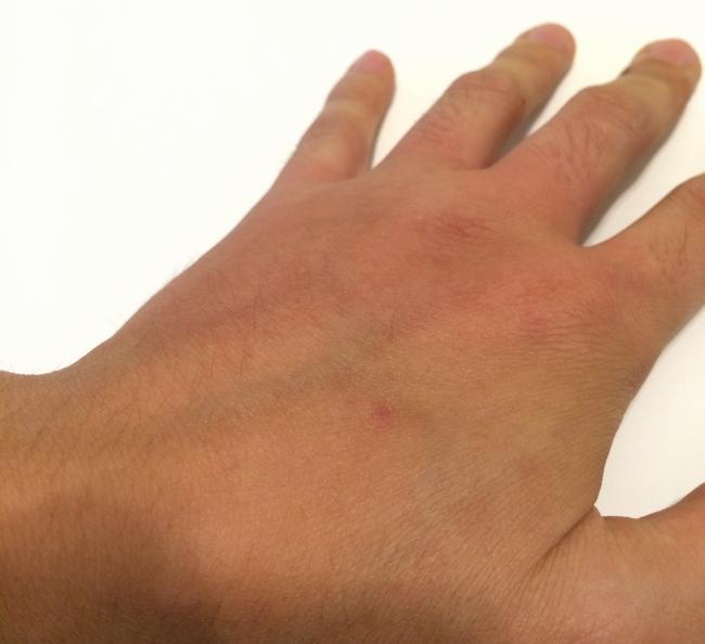 かぶれた手